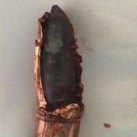 نجران: إنقاذ حياة شاب يمني اخترقت صدره رصاصة حوثية